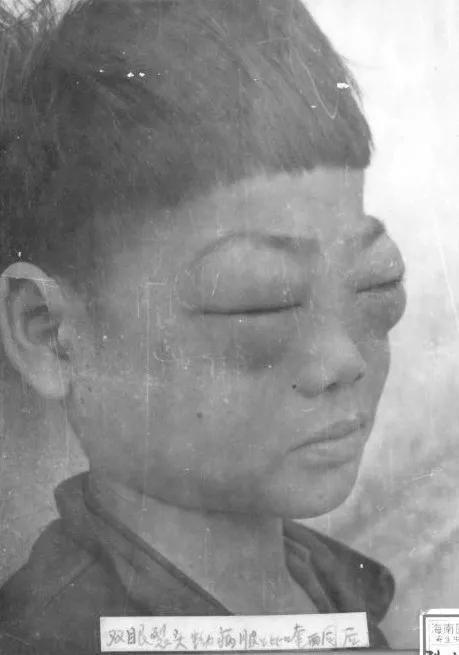 双眼裂头蚴感染病例