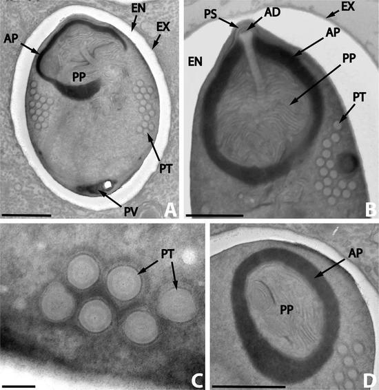一栽寄生在鱼寄生虫(复殖吸虫)体内的寄生虫(微孢子虫),称作超寄生形象