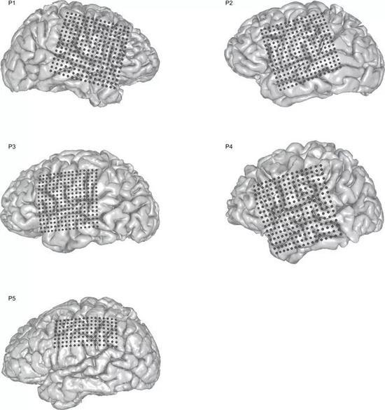 参与的志愿者大脑中的电极阵列位置