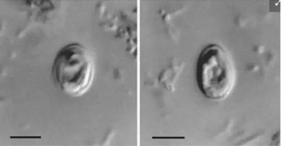 人類糞便中的隱孢子蟲卵母細胞(圖片來源:維基)