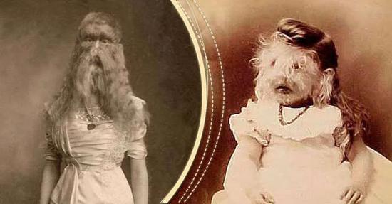Dreamland 马戏团的另一位罕见病演员:患有胎毛增多症的Blue-eyed Doherty。图片来源:wikimedia