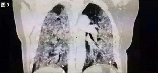 ▲白肺(图片来自网络)