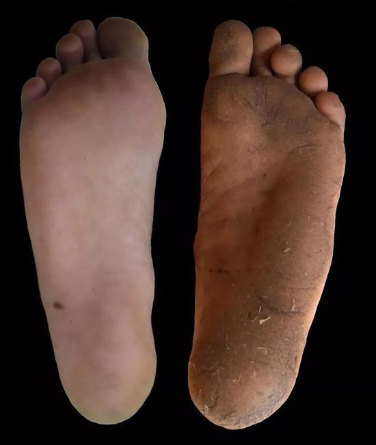 ▲惯于穿鞋的脚(左)和惯于赤足的脚(右)(图片来源:Daniel Lieberman)