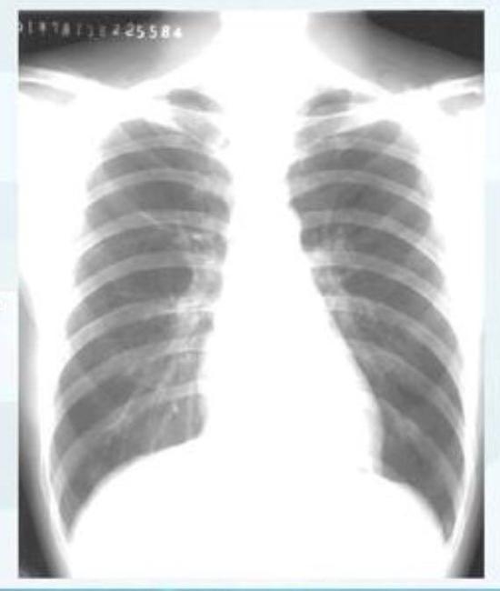 ▲正常情况下人的肺部CT表现(图片来自网络)