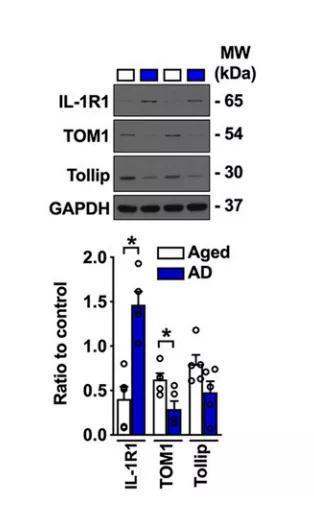 ▲在阿尔茨海默病患者(蓝色)的大脑中,TOM1的水平明显降低(图片来源:参考资料[1])