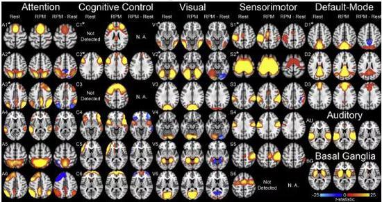 推理过程中不同神经行为由不同脑区控制。在静息状态和瑞文矩阵测试(RPM:Raven Progressive Matrices,常用于测试抽象推理能力)条件下29个神经网络:注意神经网络6个(A1 A6),认知神经网络6个(C1 C6),视觉神经网络6个(V1 V6),感觉运动神经网络6个(S1 S6),默认神经网络3个(D1 D3),听觉神经网络(AU),基底节区神经网络(BG)。在瑞文测试中,神经网络在休息期间的空间分布和性能被绘制成统计数据,暖色和冷色分别标记了在任务期间内在网络一致性显著增加和减少的区域。引自:http://dx.doi.org/10.1016/j.neuroimage.2014.09.055