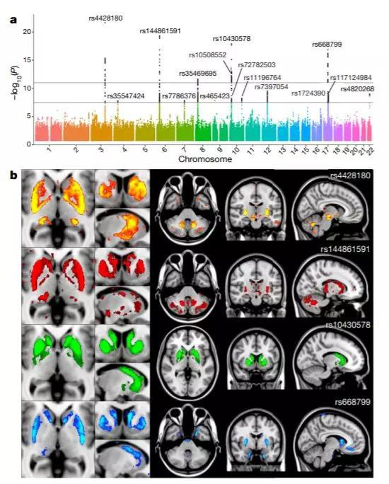 ▲基因组上的少量几个位点,就能影响大脑脑区的体积(图片来历:参考资料[2])