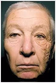 司机常年受到单侧阳光照射,左右脸老化程度相差巨大。(图片来源:Gordon and Brieva, 2012)