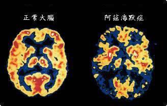 """▲晚年痴呆症,也叫""""阿尔茨海默症""""。与平常人的大脑相比,晚年痴呆症患者大脑展现了缩短"""