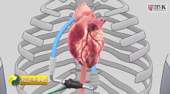 第二代功能性人工心脏
