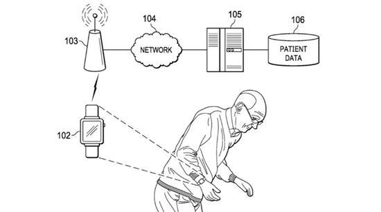 苹果手表可监测运动障碍和震颤 用来帮助治疗帕金森氏病