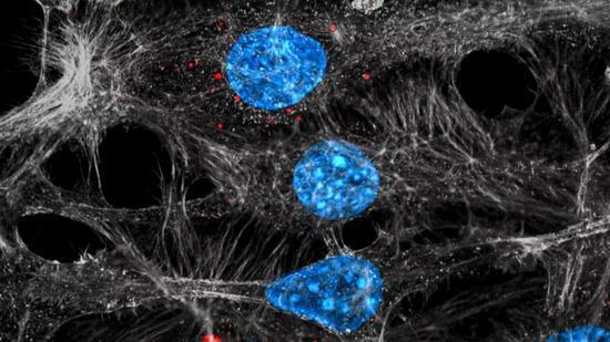 ▲内皮细胞(蓝色/灰色)正在吞入由肿瘤细胞排泄的外泌体(红色)(图片来源:C。 Cianciaruso/I。 Keklikoglou/EPFL)