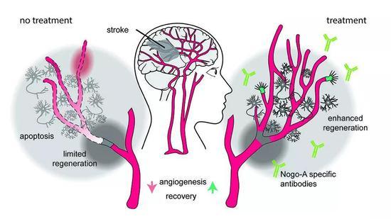 ▲本研究示意图:阻断Nogo-A促进血管生长,并提高受影响脑组织和神经环路的再生能力(Cerdit:Ruslan Rust)