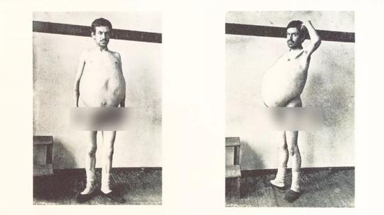 病人J.W.