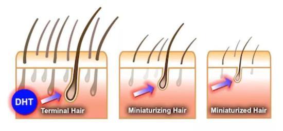 """患有""""早秃""""的男性则携带了对雄激素异常敏感的基因。"""