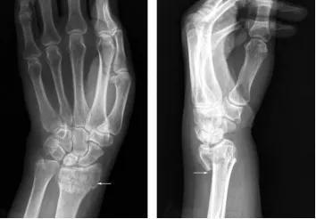 图1手部X线片(白色部位为骨骼,边缘白色模糊部分为软组织)图片来源:X线读片指南――王书轩、范国光主编