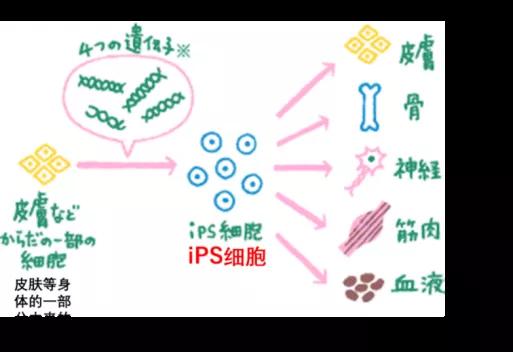 图片来源:https://www.ds-pharma.co.jp/sukoyaka/conclusion/ips/index.html