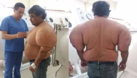 减压病让一名男子(Alejandro Ramos Martinez)肿得像个气球