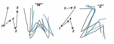 该图显示了由不同的动态刺激模式创建的不同字母形状(W和Z),刺激模式在左侧,受试者绘制的图形在右侧。(图片来源:Beauchamp等人/《细胞》)