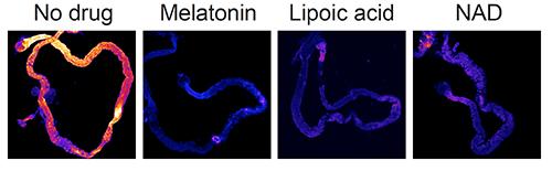 比较显示抗氧化剂化合物从睡眠不足的果蝇肠道清除ROS的功效