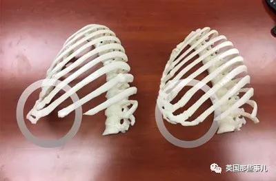 (报道和当时专家为他制作的肋骨模型对比)