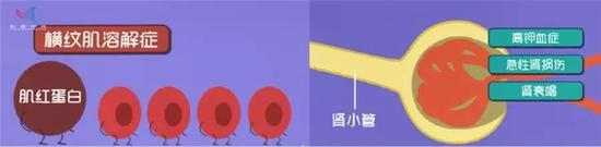 横纹肌溶解可致肾衰竭 (图片来源:作者自制)