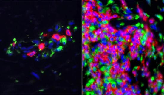 ▲红斑狼疮患者的皮肤样本显示,免疫系统的基因活性更高(图片来源:参考资料[2])