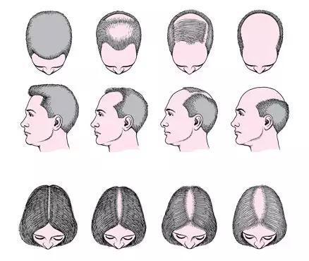 男女常见的秃头形式