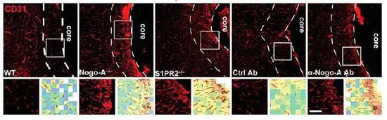 ▲阻断Nogo-A通路后,缺血边缘区的血管生长显著增强(图片来源:参考资料[1])