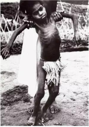 库鲁病病人(图片来源:https://en.wikipedia.org)