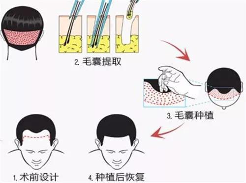 不过,植发技术是出了名的血腥,会痛到让壮丁哭得像婴儿一样哇哇叫。