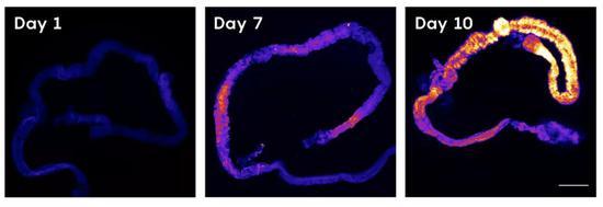 有害的活性氧在果蝇肠道内积累。越亮表明活性氧越多。 5W Infographics for Quanta Magazine