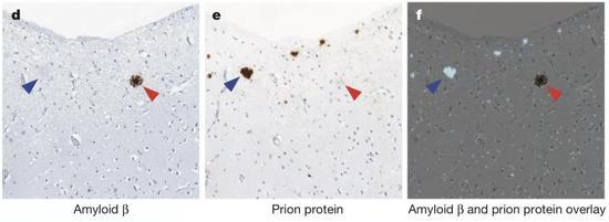 图2:伦敦大学学院(UCL)的约翰·科林奇(John Collinge)等人在克雅氏病死者脑内发现了β淀粉样蛋白斑块(红色箭头);朊病毒斑块则以蓝色箭头标出。
