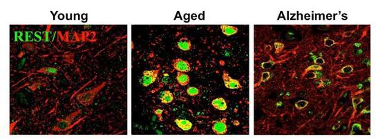 ▲REST在正常老化大脑的神经元中被诱导表达(图片来源:参考资料[4])