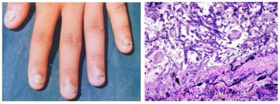 图2。浅部真菌病(左)[2]和深部真菌感染切片图(右)[3]
