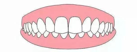 正畸堪比整容?成年人可以正畸吗?牙齿矫正的8个问题一次说清