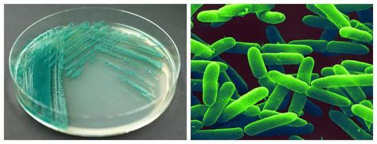 綠膿桿菌的分離培養及電鏡照片(圖片來源:中國科學院微生物研究所)