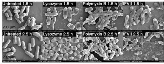 ▲在培养的大肠杆菌中加入凝血因子VII轻链组分,细菌外膜组分受损,细胞被破坏(图片来源:参考资料[1])