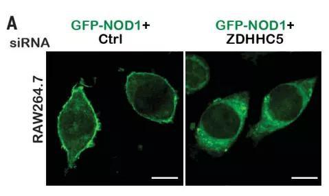 ▲抑制ZDHHC5蛋白的表达,就会影响NOD1蛋白的定位(图片来源:参考资料[1])