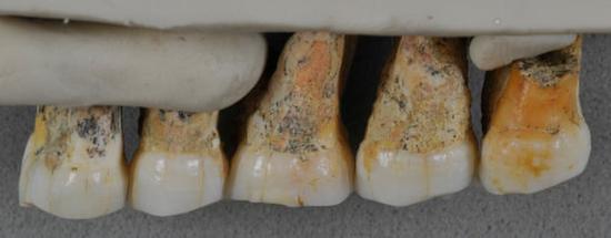 属于吕宋人的一些牙齿 图源:《卫报》
