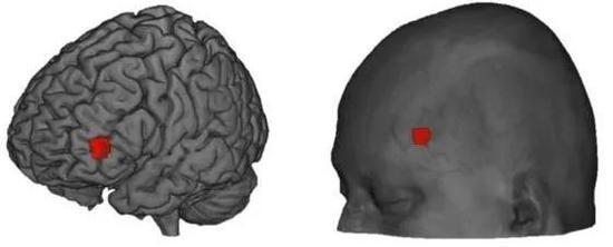 ▲紅色所示部位左前額葉外側皮質(圖片來源:參考資料[1])