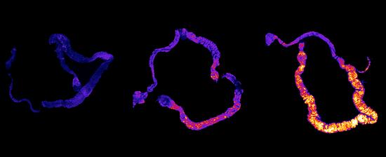 睡眠不足的果蝇(一天、七天、十天,从左到右)的肠道中会积聚活性氧(ROS)
