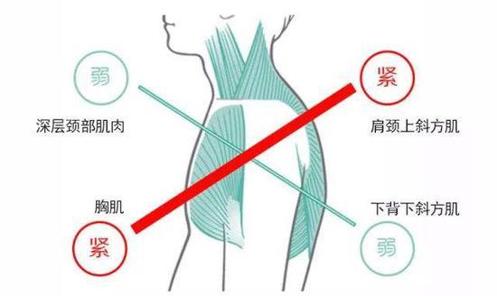 ▲上交叉综合症受影响肌肉分布图