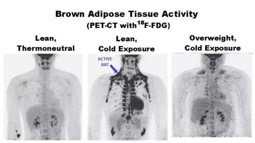 图2 PET/CT扫描,寒冷条件下瘦的人,其肩胛骨等部位褐色脂肪更多。图片来源:https://herbscientist.com/get-healthy-live-longer-with-cold-thermogenesis/