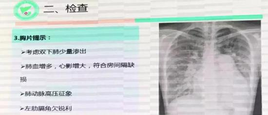 剛剛,中國完成首例AI+5G心臟手術!