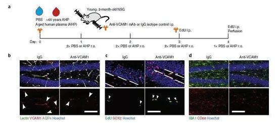 """▲年轻小鼠接受了老年人的血浆后,大脑出现""""老化"""":海马区的新生神经元减少了(图片来源:参考资料[1])"""