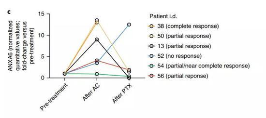 ▲人类乳腺癌患者在批准化疗后,外泌体内的annexin-A6程度也会清晰上升(图片来源:《Nature Cell Biology》)