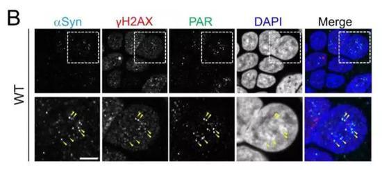 ▲α-突触核蛋白与不少负责DNA修复的元件有着共同的定位(图片来源:参考资料[1])