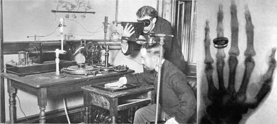 图6 左:19世纪末,用早期的克鲁克斯管设备拍摄x射线照片,能够看到桌上的鲁姆科夫线圈,那时人们还不懂得X射线的迫害,并异国进走防护;右:伦琴给夫人拍的X射线照片