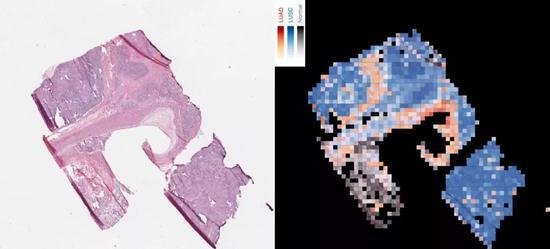 ▲上图为AI模型从癌变组织图像中识别两种肺癌类型的示意图。其中左图为原始图像,右图为AI输出的肺癌类型图谱。右图中的红色部分为鳞状细胞癌,蓝色部分为肺鳞状细胞癌,灰色部分为正常肺部组织(图片来源:NYU School of Medicine)